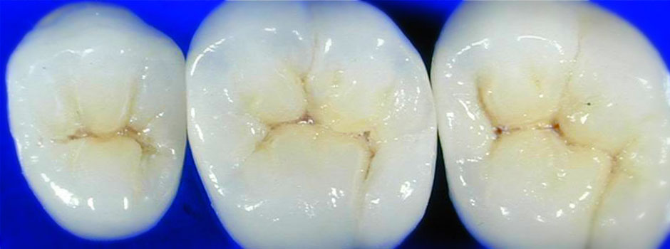Posterior Crowns