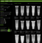 Great Search Website for identifying which type of Implant your patient has